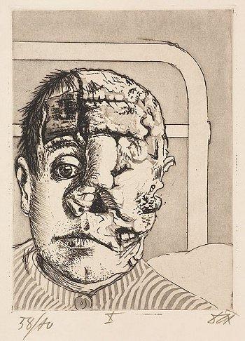 Otto Dix Trasplantado